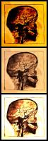 Cerebral angiogram